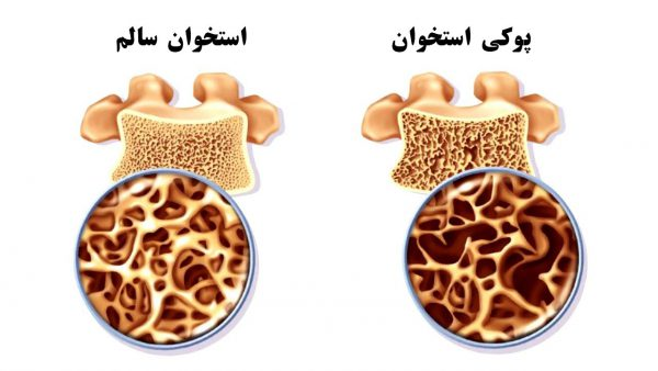 پروتئین و بیماریها | پوکی استخوان